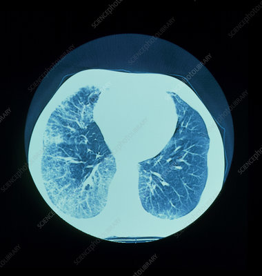 CT scan of lungs showing interstitial fibrosis