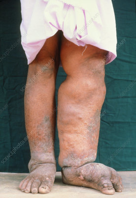 Legs of man with filariasis, elephantiasis