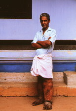 Man with filariasis, elephantiasis, of the legs