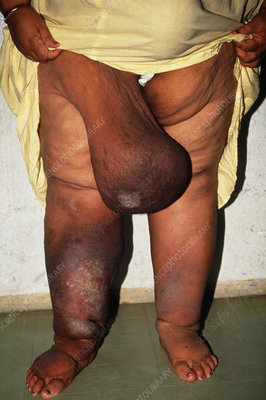 Swollen tissue, right leg of elephantiasis patient