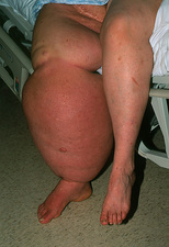 Woman with filariasis (elephantiasis) of the leg