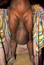 Scrotum enlarged by elephantiasis