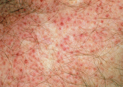 Close-up of red folliculitis papules on skin