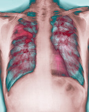 Fibrosis of the lung, X-ray