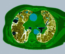 Lung fibrosis, CT scan