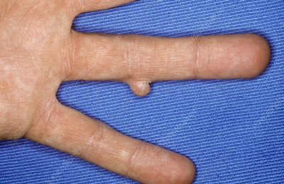 Fibroma on finger