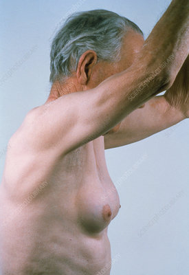 Gynaecomastia in man showing enlarged breasts