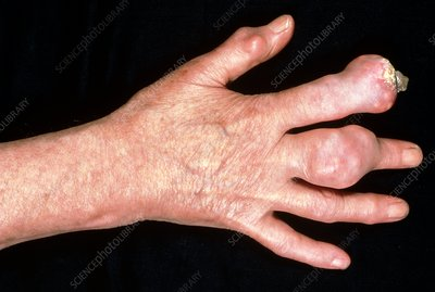 Sufferer of Chronic gout showing hand