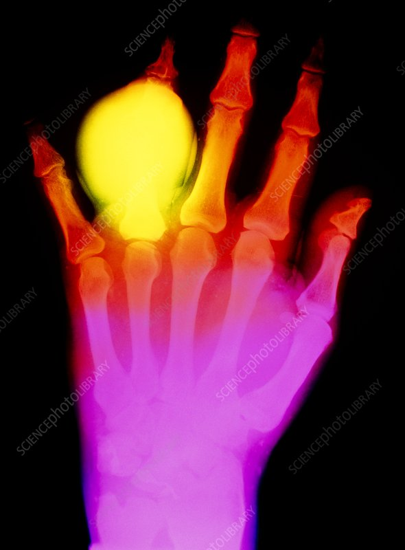False-colour X-ray of hand in gouty arthritis