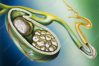 Illustration of stones in the gall bladder