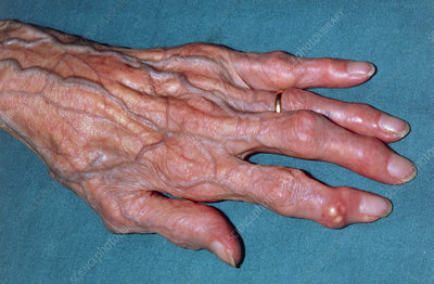 Gouty tophi: clinical photograph of hand