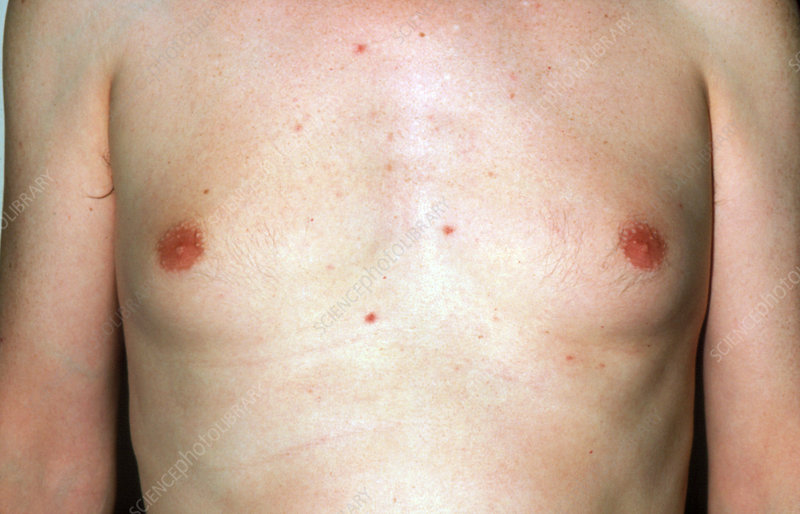 Gynaecomastia in a young man of unknown cause