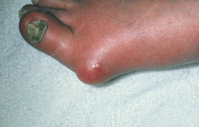 Gout: tophus at the base of the big toe