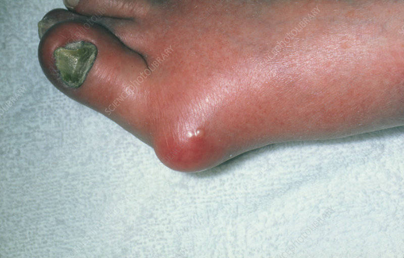 cold herpes pictures