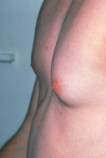 Male affected by gynaecomastia (enlarged breast)