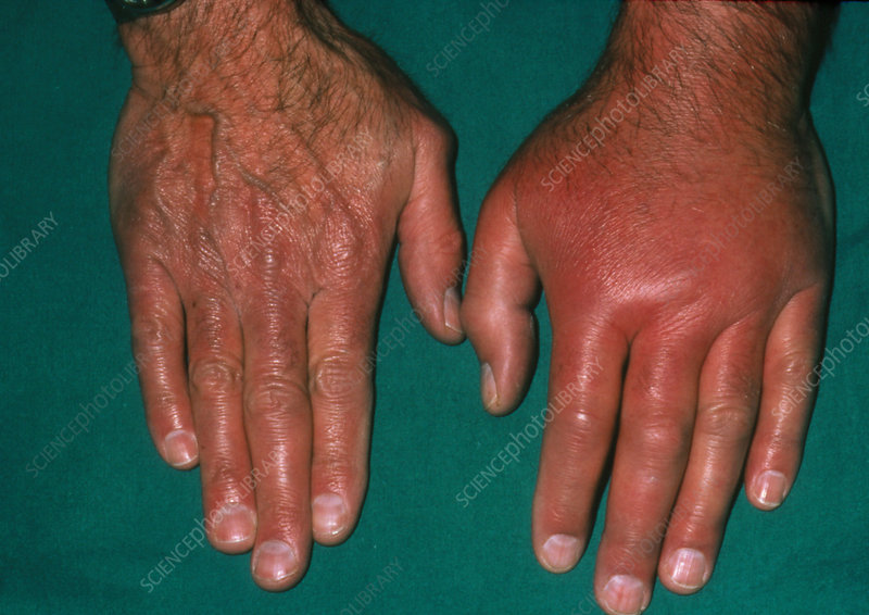 The hand of a patient affected by gout