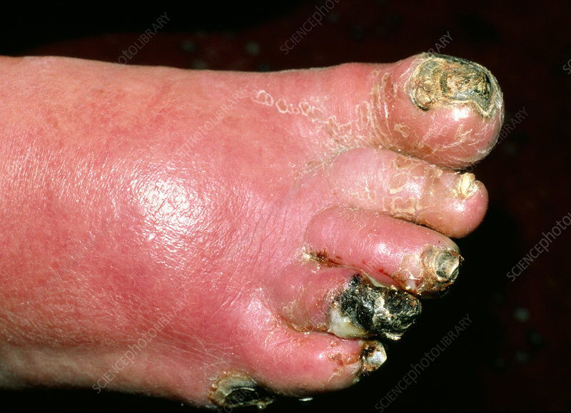 Ischaemic gangrene on diabetic foot