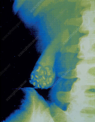 Coloured X-ray showing gallstones in gall bladder