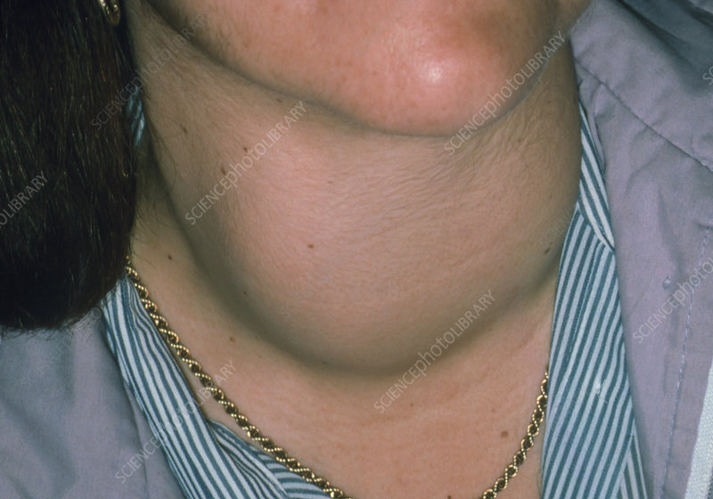 Swelling of neck due to Thyrotoxic Goitre