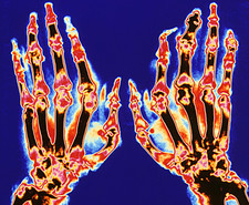 Coloured X-ray of hand in gouty arthritis