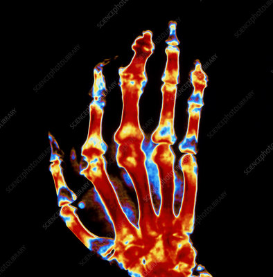 Coloured X-ray of a hand with gout