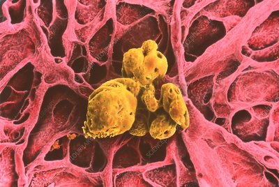 Coloured SEM of a gallstone in the gall bladder