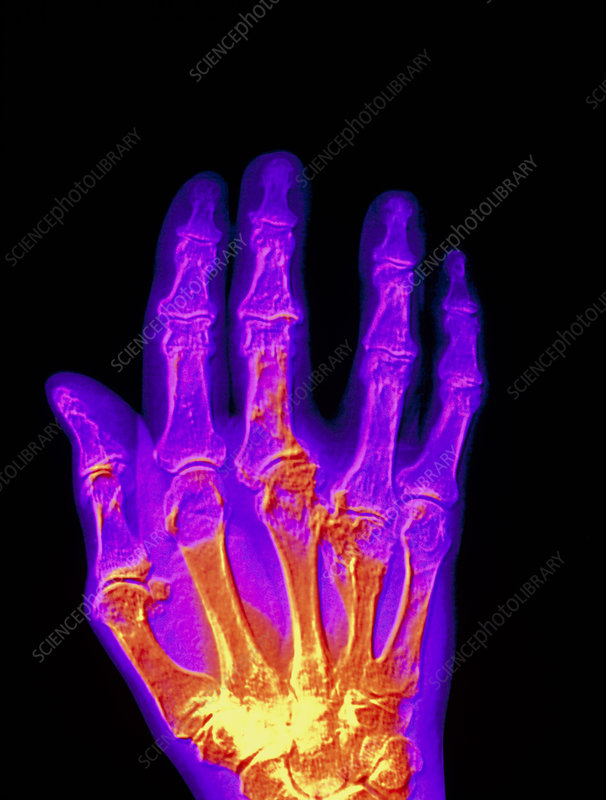 Coloured X-ray of a gout sufferer's hand