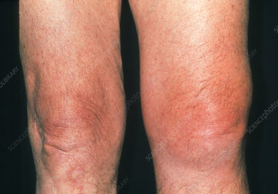 Inflamed knee of an elderly man affected by gout
