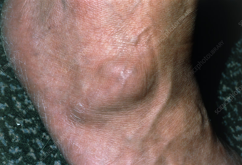 View of a ganglion found on the foot of a patient