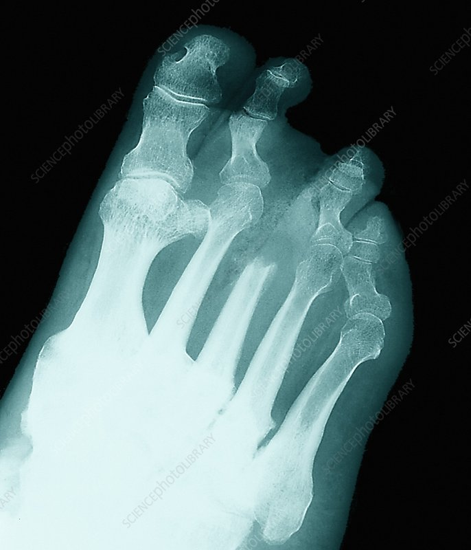 Gouty foot, X-ray