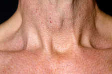 Swollen thyroid gland
