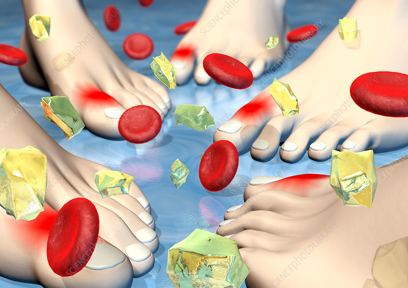 Gout joint inflammation