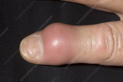 Gout in finger