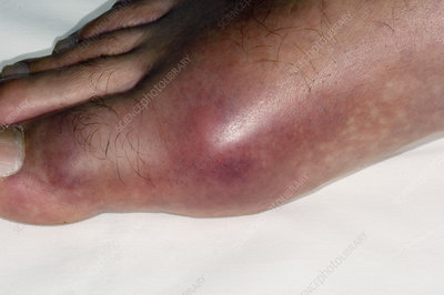 Gout of the big toe joint