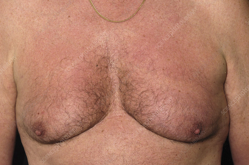 Gynaecomastia, male breasts