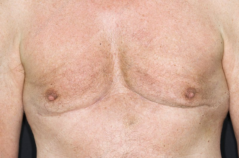 Male breasts after liposuction