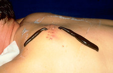 Leeches used to treat haematoma