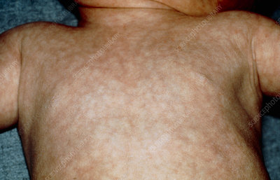 Hypothyroidism: rash on an infant's body