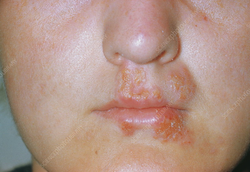 Herpes simplex sores on lip & mouth - Stock Image M170 ...
