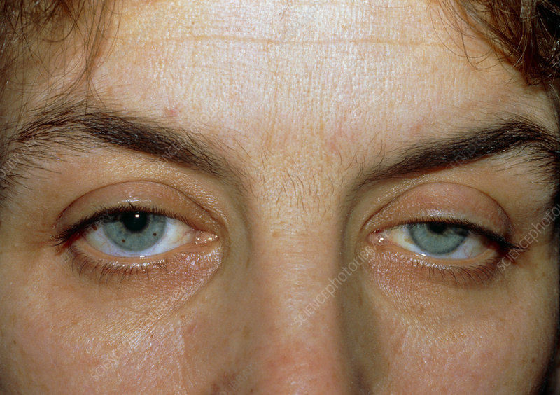 Horner's syndrome: ptosis & constricted pupil