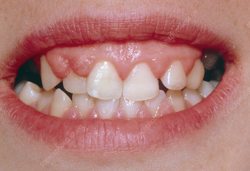 Hyperplasia of gums due to phenytoin