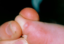 Hand, foot & mouth disease: lesion on toe