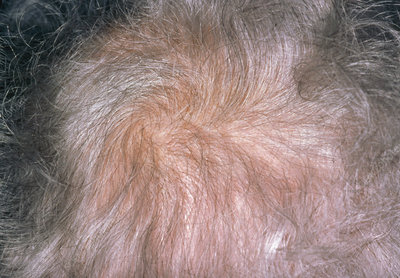 Diffuse alopecia due to hypothyroidism