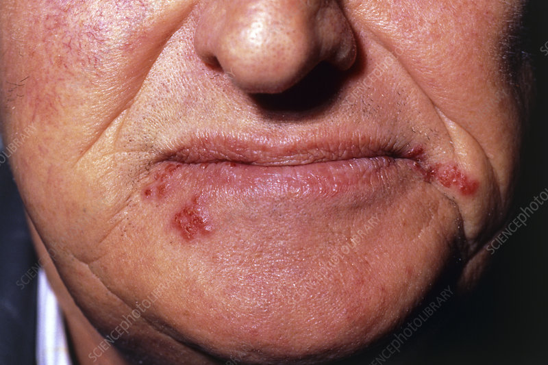 Lips infected by the Herpes simplex virus