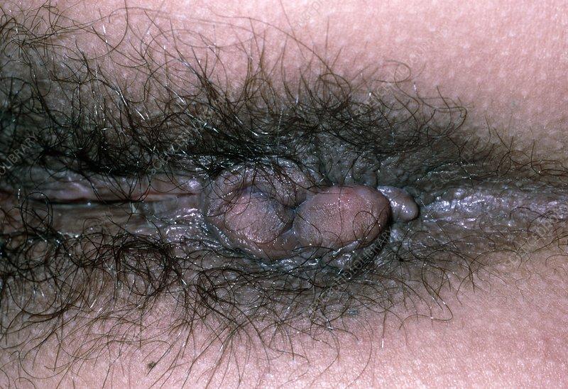 Congratulate, what anus pics close ups