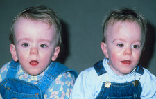 Twin boys (18-month-old) with hydrocephalus