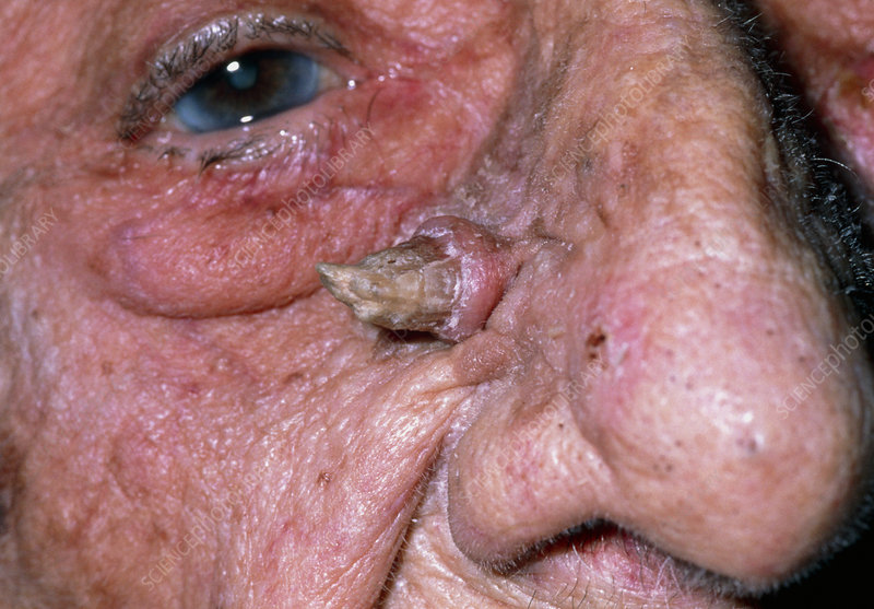M1700209-Cutaneous_horn_on_face_of_90_year-old_woman-SPL - Show Posts - statesville