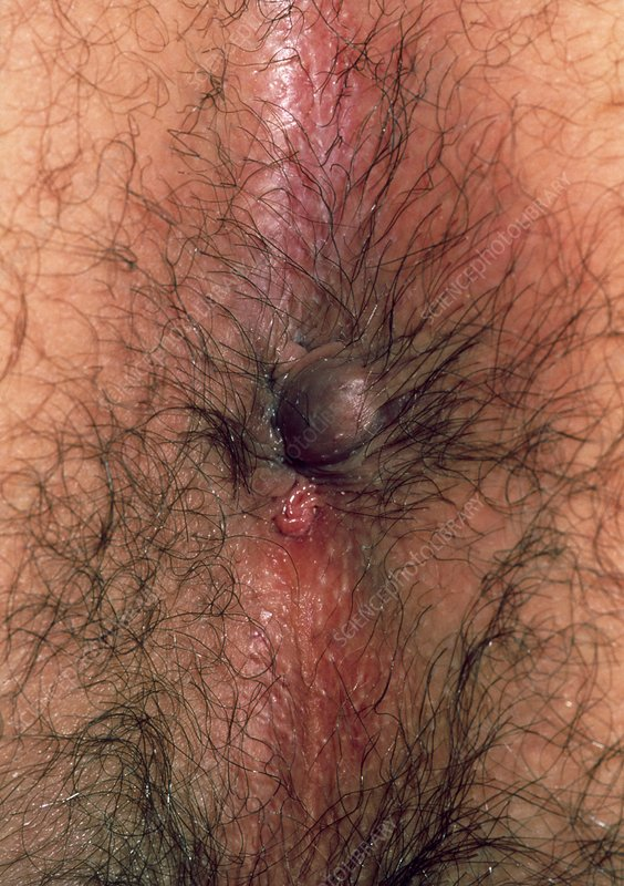 Thrombosed external haemorrhoids (piles)