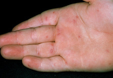 Lesions on hand due to hand, foot & mouth disease