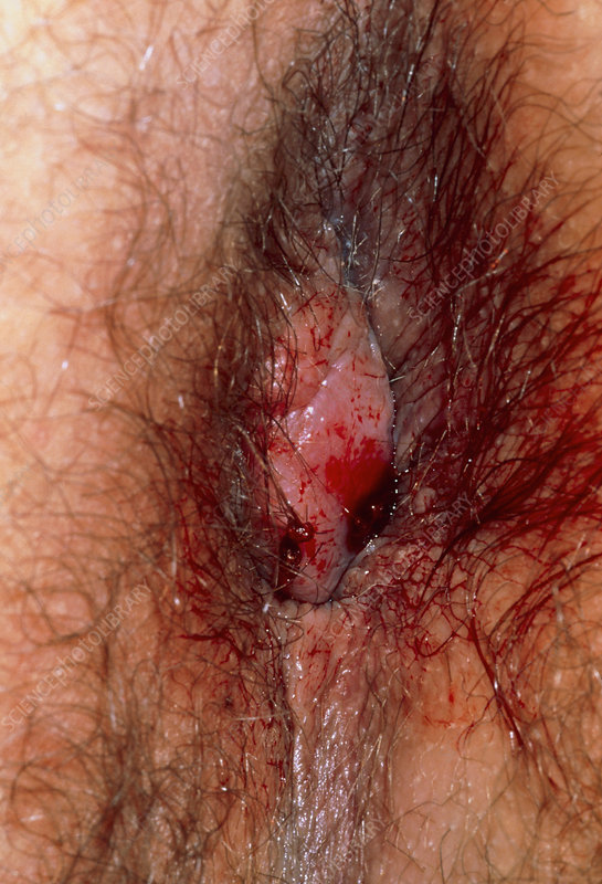 Ruptured, thrombosed external haemorrhoids (piles)